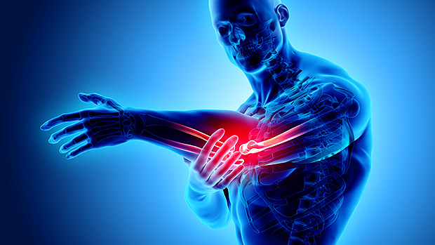 The End of Elbow Pain